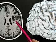 Gehirn, Sympbolbild, dpa