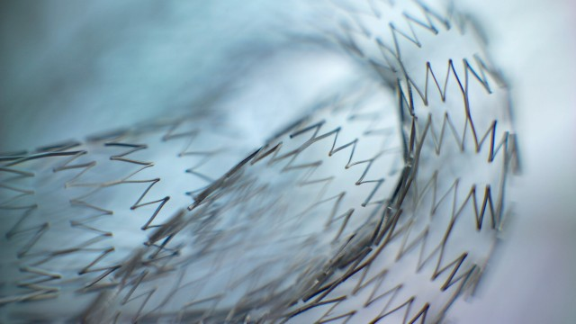 Stents Stents