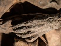 Älteste bekannte Pockenviren - Mumie