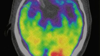 A scan of a brain used in a study associates the brain region called the amygdala, an area linked to stress, to greater risk of heart disease and stroke is seen in an undated image released by The Lancet