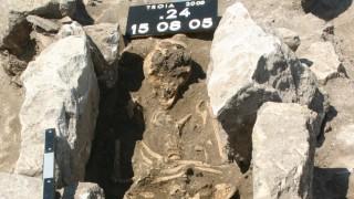 Anthropologie Paläopathologie