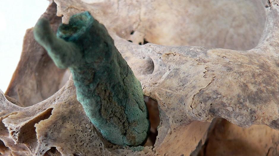 Süddeutsche Zeitung Wissen Paläopathologen