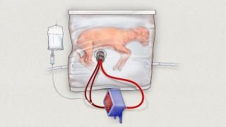 Künstlicher Mutterleib soll Frühchen helfen