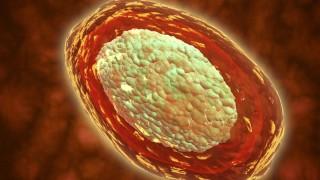 Querschnitt durch ein von Pockenviren befallenes Blutgefäß