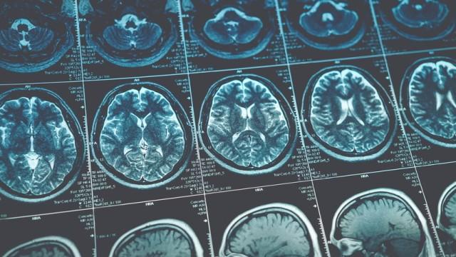 Studie: Wie Alternativmedizin Krebspatienten gefährdet