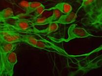 Forscher verwandeln Hautzellen von Nervenkranken in neue Nervenzellen