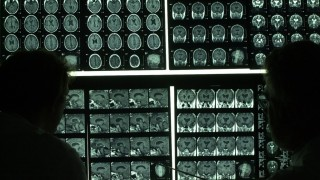 NEUROLOGIE AN JENAER UNI