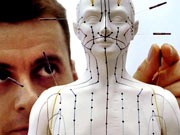 Bachblüten Homöopathie, Akupunktur, Alternative Heilverfahren