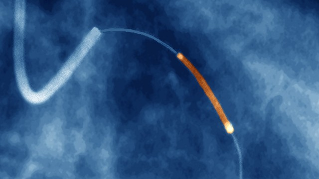 Coronary angioplasty, X-ray