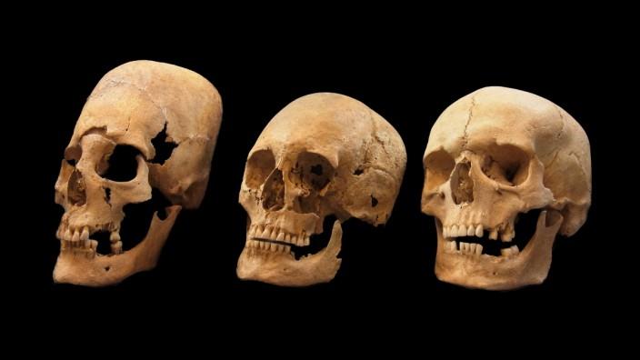 A deformed, intermediate, and non-deformed human skull. 2