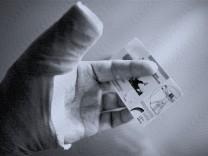 ACHTUNG KOPIE: Eine Frau mit verletztem Arm und Gesundheitskarte Berlin 05 06 2008 MODEL RELEASE vorhanden Berlin