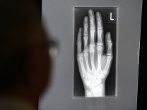 Röntgenbild einer jugendlichen Hand