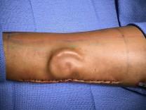 Ohr auf Unterarm gezüchtet und erfolgreich transplantiert