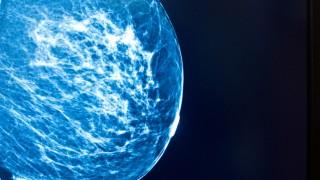 10 Jahre Mammographie Screening Programm