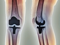 Total knee replacement X rays Total knee replacement Coloured frontal left and profile right X