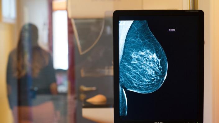 Röntgenaufnahme einer Frauen-Brust