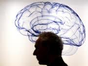 Kernspintomographie Gehirn, Männer, Frauen, dpa