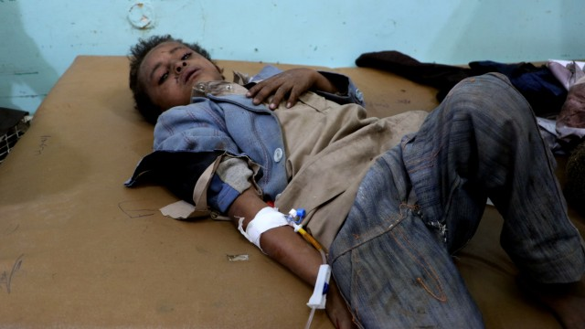 A Yemeni boy lies in the hospital after he was injured by an airstrike in Saada