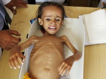 Hungersnot im Jemen