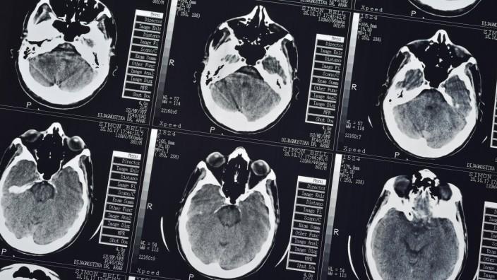 CT Scan eines menschlichen männlichen Gehirns Nahaufnahme *** CT scan of a human male brain Close