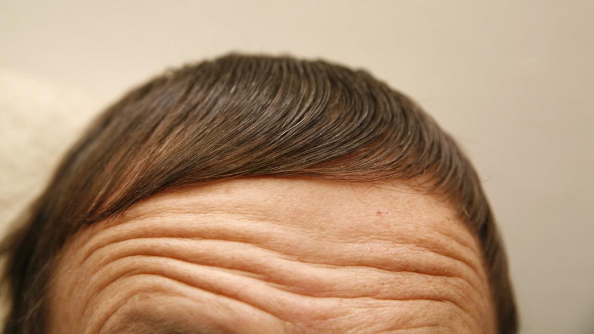 Finasterid - Volles Haar, kaputtes Leben