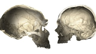 Human Versus Neandertal Braincase