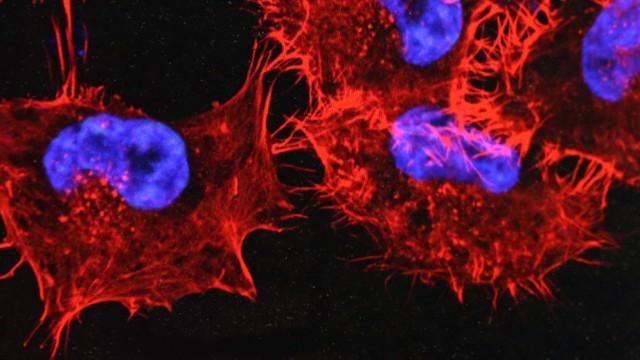Krebszellen auf einem Monitor