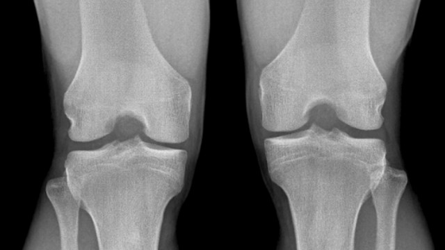 Normal knees X ray Normal knees Frontal X ray of the flexed knees of a 24 year old patient PUBLIC