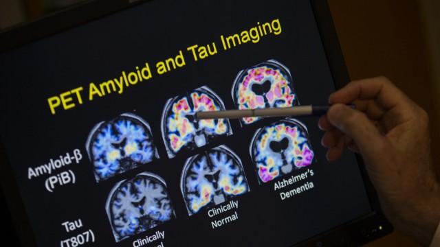 Neurologie Neurologie