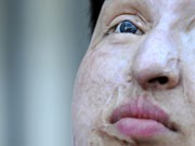 Ameneh Bahrami, Iran, Säure, Gesicht, Selbstjustiz, verflossener Liebhaber, AFP