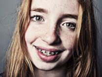 Portrait Mädchen mit Zahnspange rothaarig Copyright imageBROKER JanxTepass ibljte04187430 jpg