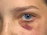 Häusliche Gewalt, Misshandlung, blaues Auge