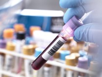 Medical technician preparing a human blood sample for clinical testing model released Symbolfoto property released PUBL