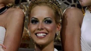 Ungarn; Plastik-Schönheitswettbewerb; AP