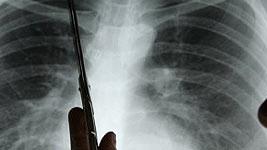 Röntgenaufnahme der Lunge, dpa
