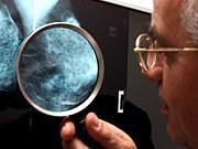 Arzt mit Röntgenbild, ddp