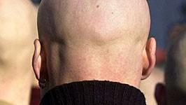 Skinheads auf Demonstration, dpa