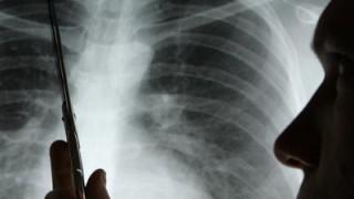 Millionen Atemwegserkrankungen Schatten Auf Deutschen Lungen