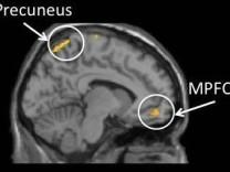 mittlerer präfrontaler Cortex