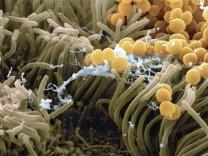 MRSA-Schnelltest liefert Ergebnis in nur fünf Stunden/Neue Waffe gegen Superbakterien