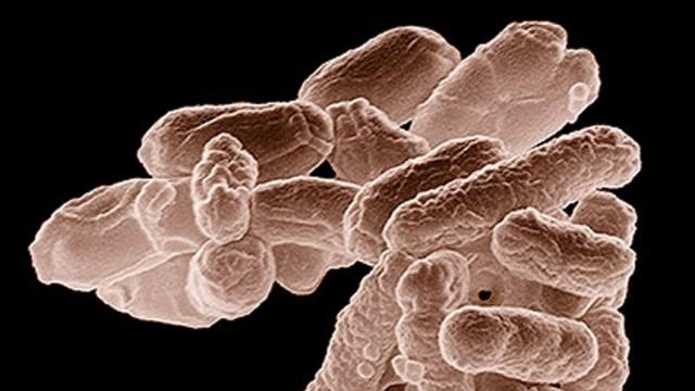 Handout of electron micrograph of E. coli bacteria